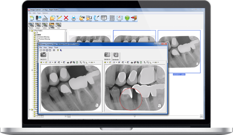 Dental Practice Management Software digital x-ray interface feature