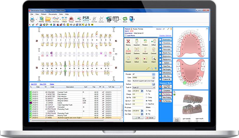 Dental Practice Management Software fully customizable restorative charting feature